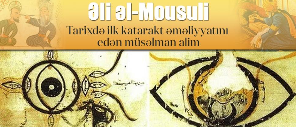 Tarixdə ilk katarakt əməliyyatını edən müsəlman alim: əl-Mousuli